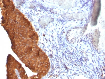 Staining by anti-Cytokeratin 19 Antibody 1