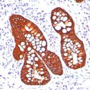Staining by anti-Cytokeratin 19 Antibody 1