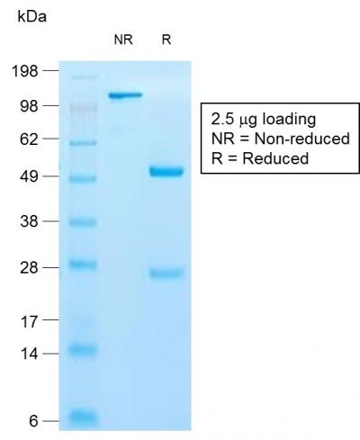 Cytokeratin 10 (KRT10) (Suprabasal Epithelial Marker