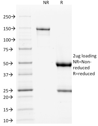 p53 Tumor Suppressor Protein Ultraspecific Antibody , Tested against  >20,000 Human Proteins