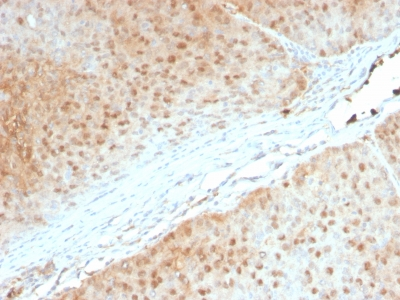 FFPE human pancreas sections stained with 100 ul anti-AKT1 (clone AKT1/2552) at 1:100. HIER epitope retrieval prior to staining was performed in 10mM Citrate, pH 6.0.