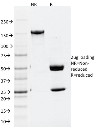 Data from SDS-PAGE analysis of Anti-ATG5 antibody (Clone ATG5/2101). Reducing lane (R) shows heavy and light chain fragments. NR lane shows intact antibody with expected MW of approximately 150 kDa. The data are consistent with a high purity, intact mAb.