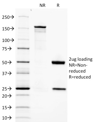 Data from SDS-PAGE analysis of Anti-Adiponectin antibody (Clone ADPN/1370). Reducing lane (R) shows heavy and light chain fragments. NR lane shows intact antibody with expected MW of approximately 150 kDa. The data are consistent with a high purity, intact mAb.