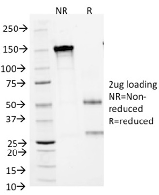 Data from SDS-PAGE analysis of Anti-Arginase 1 antibody (Clone ARG1/1125). Reducing lane (R) shows heavy and light chain fragments. NR lane shows intact antibody with expected MW of approximately 150 kDa. The data are consistent with a high purity, intact mAb.