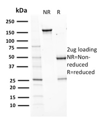 Data from SDS-PAGE analysis of Anti-Aurora B antibody (Clone AURKB/1593). Reducing lane (R) shows heavy and light chain fragments. NR lane shows intact antibody with expected MW of approximately 150 kDa. The data are consistent with a high purity, intact mAb.