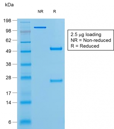 Data from SDS-PAGE analysis of Anti-Bcl-6 antibody (Clone rBCL6/1527). Reducing lane (R) shows heavy and light chain fragments. NR lane shows intact antibody with expected MW of approximately 150 kDa. The data are consistent with a high purity, intact mAb.