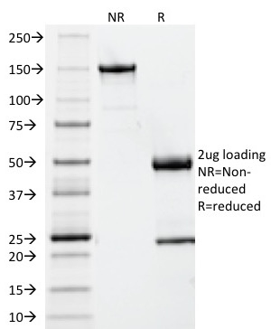 Data from SDS-PAGE analysis of Anti-Beta-2 Microglobulin antibody (Clone B2M/961). Reducing lane (R) shows heavy and light chain fragments. NR lane shows intact antibody with expected MW of approximately 150 kDa. The data are consistent with a high purity, intact mAb.