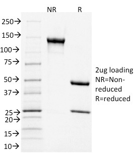 Data from SDS-PAGE analysis of Anti-CD3 antibody (Clone C3e/1931). Reducing lane (R) shows heavy and light chain fragments. NR lane shows intact antibody with expected MW of approximately 150 kDa. The data are consistent with a high purity, intact mAb.