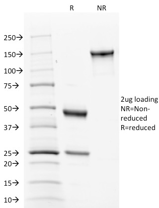 Data from SDS-PAGE analysis of Anti-Calnexin antibody (Clone CANX/1543). Reducing lane (R) shows heavy and light chain fragments. NR lane shows intact antibody with expected MW of approximately 150 kDa. The data are consistent with a high purity, intact mAb.
