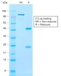 Data from SDS-PAGE analysis of Anti-Calponin-1 antibody (Clone rCNN1/832). Reducing lane (R) shows heavy and light chain fragments. NR lane shows intact antibody with expected MW of approximately 150 kDa. The data are consistent with a high purity, intact mAb.