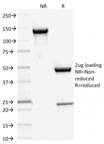 Data from SDS-PAGE analysis of Anti-DNMT3A antibody (Clone PCRP-DNMT3A-1E2). Reducing lane (R) shows heavy and light chain fragments. NR lane shows intact antibody with expected MW of approximately 150 kDa. The data are consistent with a high purity, intact mAb.