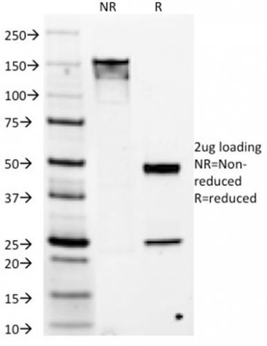 Data from SDS-PAGE analysis of Anti-DOG1 antibody (Clone DG1/1486). Reducing lane (R) shows heavy and light chain fragments. NR lane shows intact antibody with expected MW of approximately 150 kDa. The data are consistent with a high purity, intact mAb.