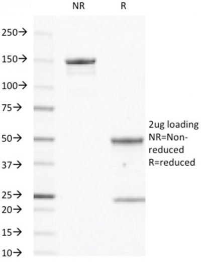 Data from SDS-PAGE analysis of Anti-EGFR antibody (Clone GFR450). Reducing lane (R) shows heavy and light chain fragments. NR lane shows intact antibody with expected MW of approximately 150 kDa. The data are consistent with a high purity, intact mAb.