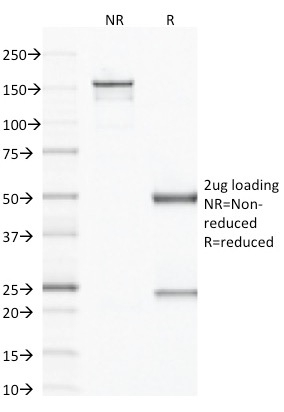 Data from SDS-PAGE analysis of Anti-Factor XIIIa antibody (Clone F13A1/1683). Reducing lane (R) shows heavy and light chain fragments. NR lane shows intact antibody with expected MW of approximately 150 kDa. The data are consistent with a high purity, intact mAb.
