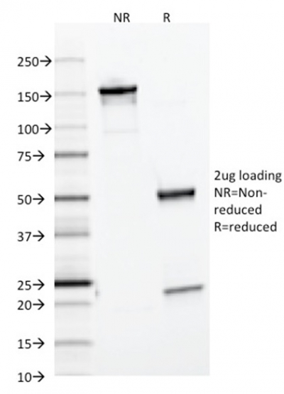 Data from SDS-PAGE analysis of Anti-Ferritin Light Chain antibody (Clone FTL/1386). Reducing lane (R) shows heavy and light chain fragments. NR lane shows intact antibody with expected MW of approximately 150 kDa. The data are consistent with a high purity, intact mAb.