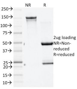 Data from SDS-PAGE analysis of Anti-GAD2 antibody (Clone GAD2/1960). Reducing lane (R) shows heavy and light chain fragments. NR lane shows intact antibody with expected MW of approximately 150 kDa. The data are consistent with a high purity, intact mAb.