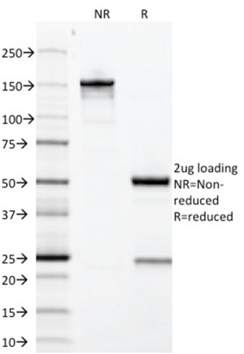 Data from SDS-PAGE analysis of Anti-Growth Hormone antibody (Clone GH/1371). Reducing lane (R) shows heavy and light chain fragments. NR lane shows intact antibody with expected MW of approximately 150 kDa. The data are consistent with a high purity, intact mAb.