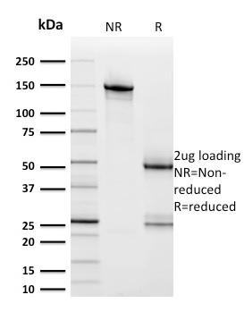 Data from SDS-PAGE analysis of Anti-HER2 antibody (Clone ERBB2/2453). Reducing lane (R) shows heavy and light chain fragments. NR lane shows intact antibody with expected MW of approximately 150 kDa. The data are consistent with a high purity, intact mAb.