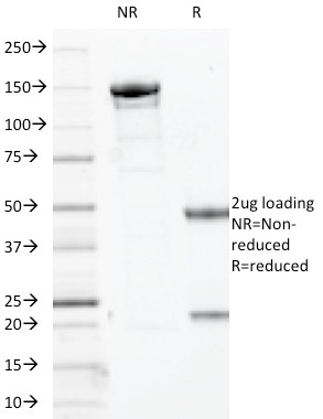 Data from SDS-PAGE analysis of Anti-Myogenin antibody (Clone MYOG/2660). Reducing lane (R) shows heavy and light chain fragments. NR lane shows intact antibody with expected MW of approximately 150 kDa. The data are consistent with a high purity, intact mAb.