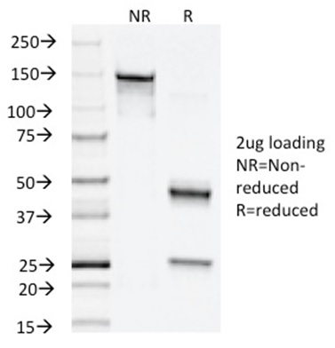 Data from SDS-PAGE analysis of Anti-Napsin A antibody (Clone NAPSA/1238). Reducing lane (R) shows heavy and light chain fragments. NR lane shows intact antibody with expected MW of approximately 150 kDa. The data are consistent with a high purity, intact mAb.