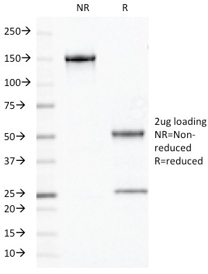 Data from SDS-PAGE analysis of Anti-Olig2 antibody (Clone OLIG2/2400). Reducing lane (R) shows heavy and light chain fragments. NR lane shows intact antibody with expected MW of approximately 150 kDa. The data are consistent with a high purity, intact mAb.