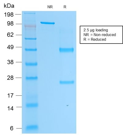 Data from SDS-PAGE analysis of Anti-PSAP antibody (Clone rACPP/1338). Reducing lane (R) shows heavy and light chain fragments. NR lane shows intact antibody with expected MW of approximately 150 kDa. The data are consistent with a high purity, intact mAb.