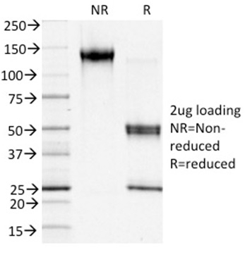 Data from SDS-PAGE analysis of Anti-S100A4 antibody (Clone S100A4/1481). Reducing lane (R) shows heavy and light chain fragments. NR lane shows intact antibody with expected MW of approximately 150 kDa. The data are consistent with a high purity, intact mAb.