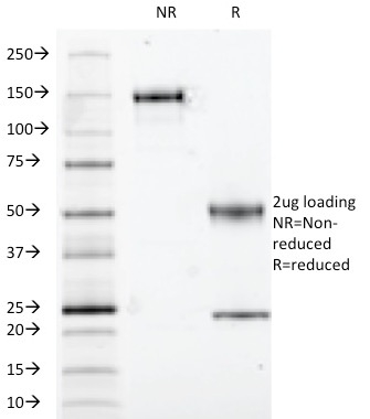 Data from SDS-PAGE analysis of Anti-S100B antibody (Clone S100B/1012). Reducing lane (R) shows heavy and light chain fragments. NR lane shows intact antibody with expected MW of approximately 150 kDa. The data are consistent with a high purity, intact mAb.