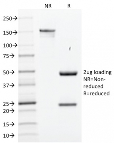 Data from SDS-PAGE analysis of Anti-SOX2 antibody (Clone SOX2/1791). Reducing lane (R) shows heavy and light chain fragments. NR lane shows intact antibody with expected MW of approximately 150 kDa. The data are consistent with a high purity, intact mAb.
