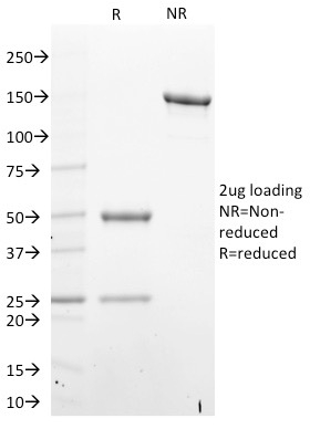 Data from SDS-PAGE analysis of Anti-STAT6 antibody (Clone STAT6/2410). Reducing lane (R) shows heavy and light chain fragments. NR lane shows intact antibody with expected MW of approximately 150 kDa. The data are consistent with a high purity, intact mAb.