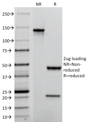 Data from SDS-PAGE analysis of Anti-TROP2 antibody (Clone TACSTD2/2152). Reducing lane (R) shows heavy and light chain fragments. NR lane shows intact antibody with expected MW of approximately 150 kDa. The data are consistent with a high purity, intact mAb.