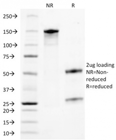 Data from SDS-PAGE analysis of Anti-TROP2 antibody (Clone TACSTD2/2153). Reducing lane (R) shows heavy and light chain fragments. NR lane shows intact antibody with expected MW of approximately 150 kDa. The data are consistent with a high purity, intact mAb.