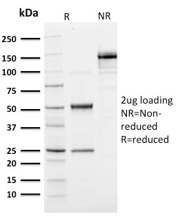 Data from SDS-PAGE analysis of Anti-Ubiquitin antibody (Clone UBB/1748). Reducing lane (R) shows heavy and light chain fragments. NR lane shows intact antibody with expected MW of approximately 150 kDa. The data are consistent with a high purity, intact mAb.
