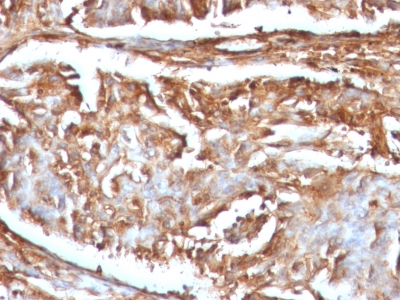 FFPE human renal cell carcinoma sections stained with 100 ul anti-Beta-2 Microglobulin (clone B2M/961) at 1:300. HIER epitope retrieval prior to staining was performed in 10mM Citrate, pH 6.0.
