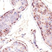 Formalin-fixed, paraffin embedded human testis sections stained with 100 ul anti-MAGE-1 (clone SPM282) at 1:100. HIER epitope retrieval prior to staining was performed in 10mM Citrate, pH 6.0.