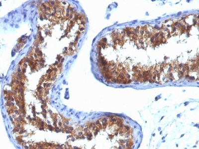 Staining with Mouse monoclonal MVP [Clone 1032] antibody in formalin-fixed paraffin-embedded human testicular carcinoma.