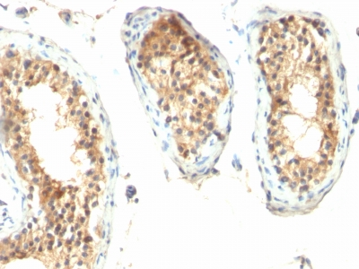 Formalin-fixed, paraffin embedded human testicular carcinoma sections stained with 100 ul anti-Ornithine Decarboxylase-1 (clone ODC1/485) at 1:200. HIER epitope retrieval prior to staining was performed in 10mM Citrate, pH 6.0.