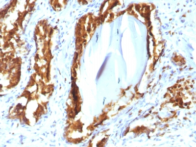 FFPE human prostate carcinoma sections stained with 100 ul anti-PSAP (clone rACPP/1338) at 1:300. HIER epitope retrieval prior to staining was performed in 10mM Citrate, pH 6.0.