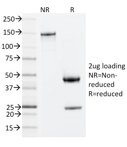 Data from SDS-PAGE analysis of Anti-ZAP70 antibody (Clone ZAP70/2035). Reducing lane (R) shows heavy and light chain fragments. NR lane shows intact antibody with expected MW of approximately 150 kDa. The data are consistent with a high purity, intact mAb.