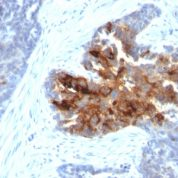 FFPE human ovarian carcinoma sections stained with 100 ul anti-TAG-72 / CA72.4 (clone B72.3 + CA72/733) at 1:100. HIER epitope retrieval prior to staining was performed in 10mM Citrate, pH 6.0.