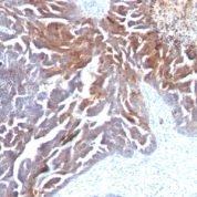 FFPE human ovarian carcinoma sections stained with 100 ul anti-TAG-72 / CA72.4 (clone CC49) at 1:300. HIER epitope retrieval prior to staining was performed in 10mM Citrate, pH 6.0.