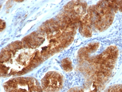FFPE human prostate carcinoma sections stained with 100 ul anti-TAG-72 / CA72.4 (clone B72.3 + CC49) at 1:400. HIER epitope retrieval prior to staining was performed in 10mM Citrate, pH 6.0.