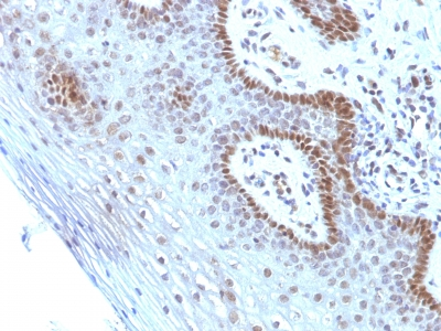 c-Myc Oncoprotein IHC human Cervical Carcinoma (SPM237)